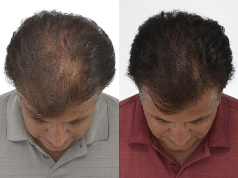 Igrow Laser Hair Regrowth System